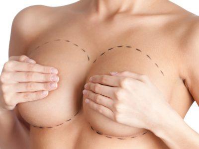 cirugia plastica - medicina estetica marbella